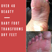 Fabulous Product Discovery: Baby Foot TRANSFORMS Your Dry, Cracked Feet!