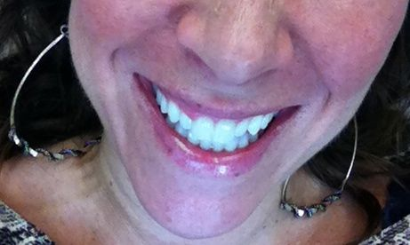 My Experience With Zoom Professional Teeth Whitening