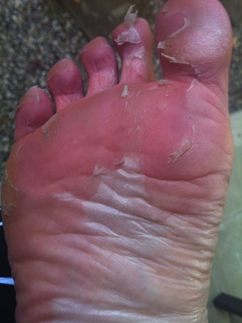 Fabulous Product Discovery Baby Foot Transforms Your Dry