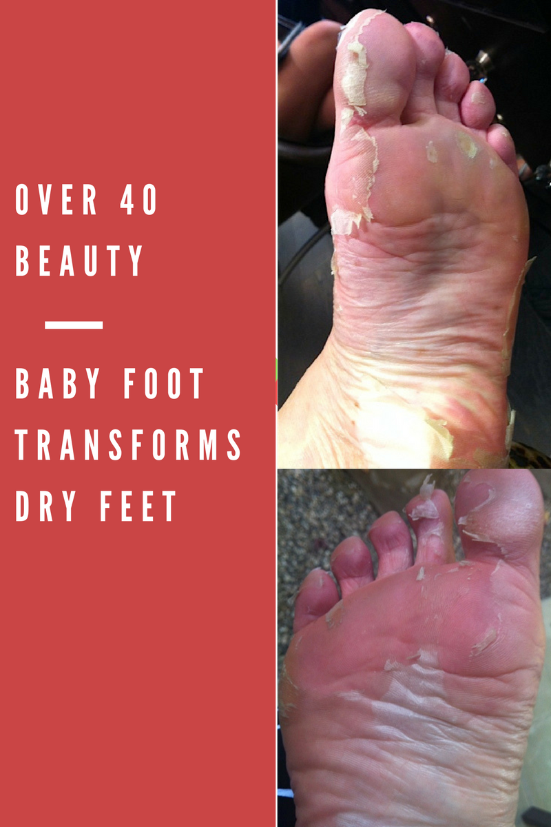 dry skin on one foot