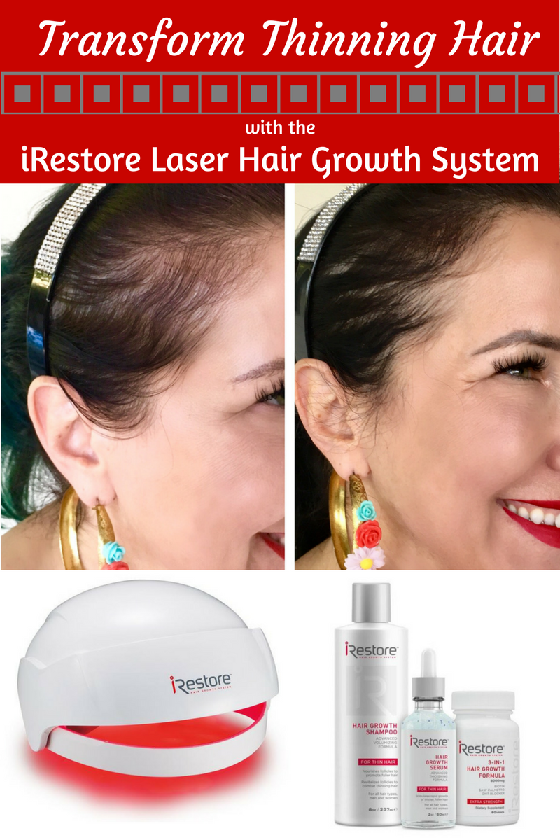 irestore hair growth system transforms thinning hair - romy raves