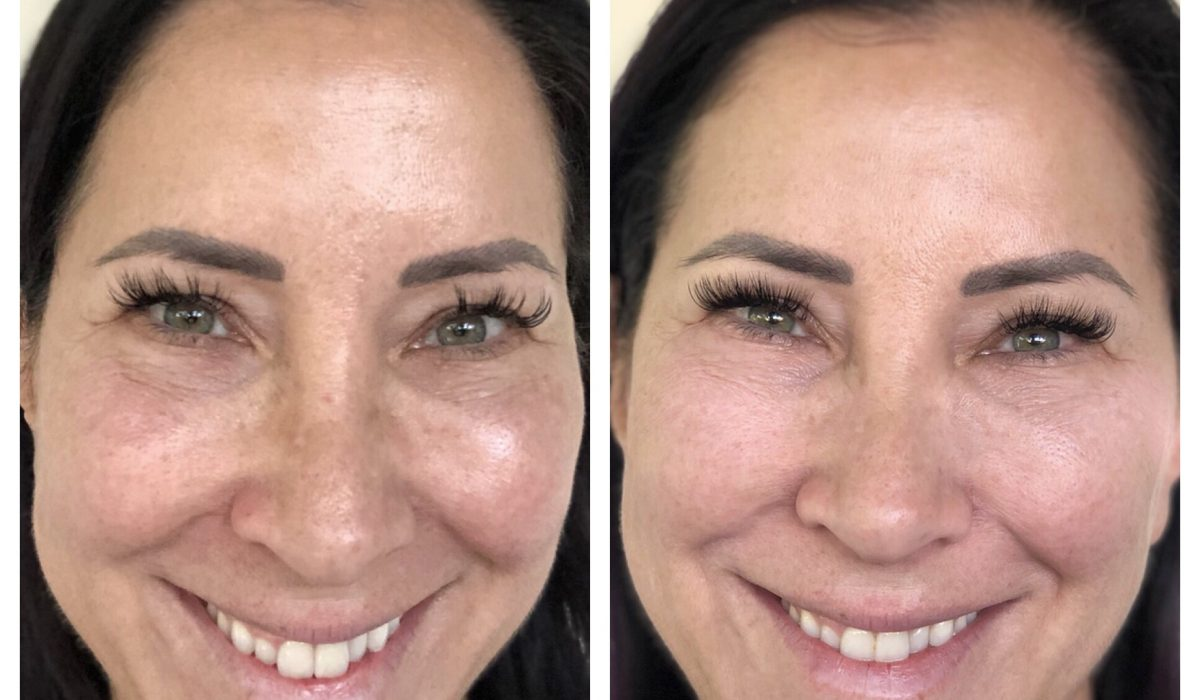 New Year, New You: Rebooting My Wellness & Skin Health in 2019