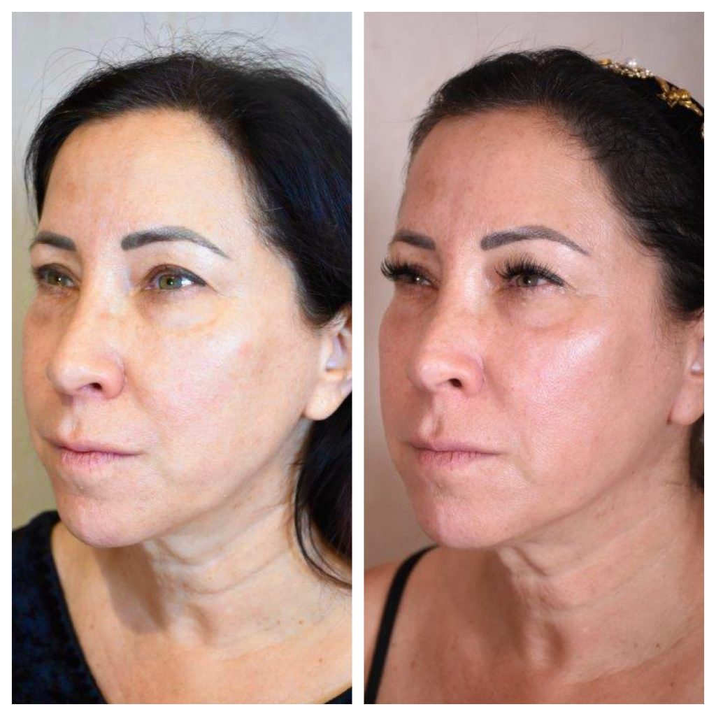 I'm excited to introduce you to Potenza, an innovative microneedling and radiofrequency treatment that helps regenerate collagen & elastin